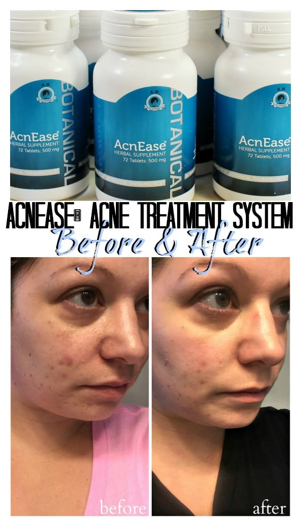 Acnease Acne treatment system skin care blemishes before after pics