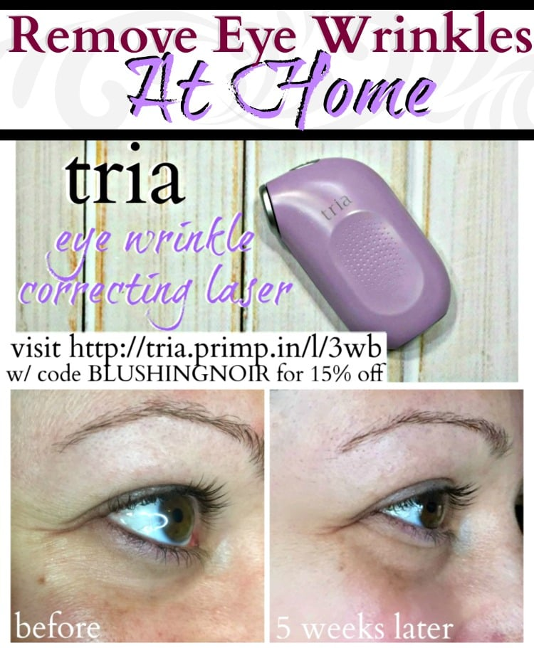 get rid of eye wrinkles at home tria eye wrinkle correcting laser removal coupon code discount